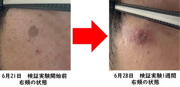 カソーダ検証実験開始から1週間 右頬の状態 写真