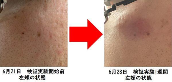 カソーダ検証実験開始から1週間 左頬の状態 写真