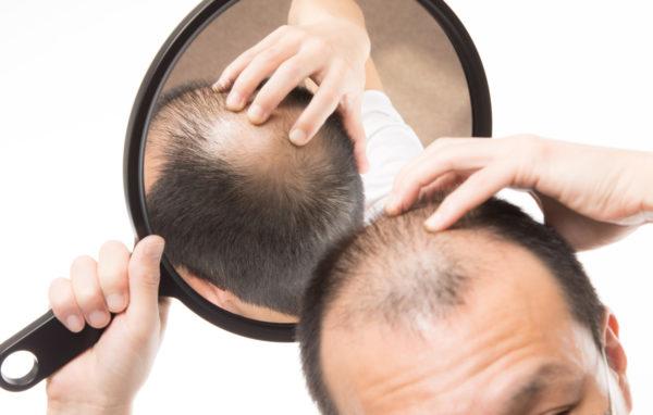 頭頂部の目立つ薄毛 写真