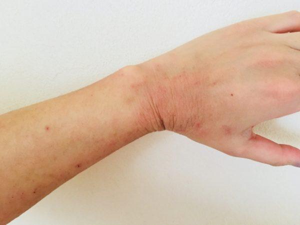 手の肌荒れ 写真