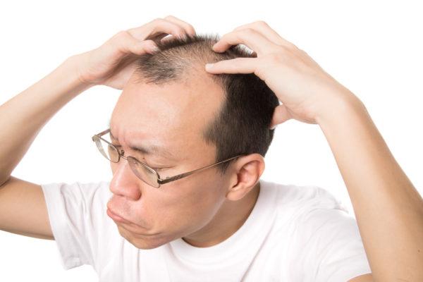 頭皮ケアする薄毛の男性 写真