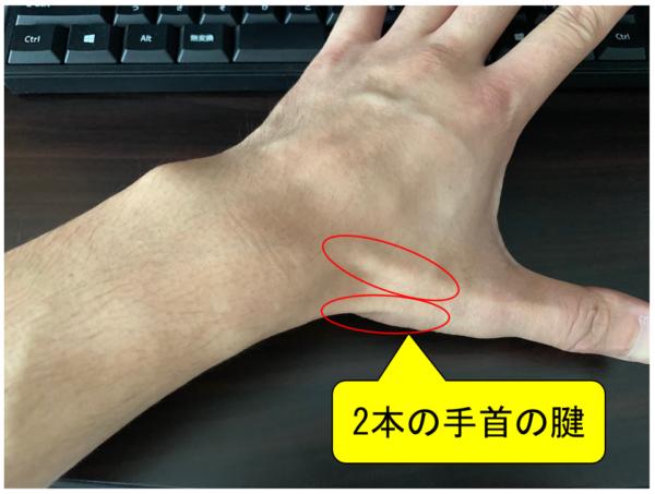2本の手首の腱 写真