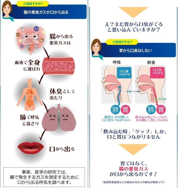 腸の悪臭ガスが出る図 画像