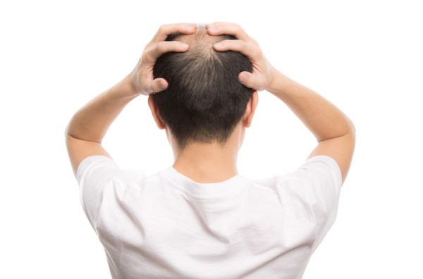 育毛で悩んでいる男性 写真