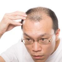 育毛剤の効果に不満のある男性 写真