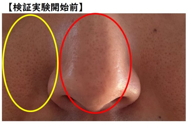 TAIGA流 毛穴パック法 検証実験開始前の肌状態 写真