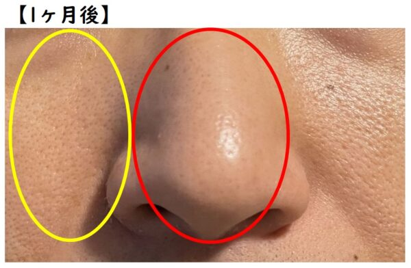 TAIGA流 毛穴パック法 1ヶ月後の肌状態 写真