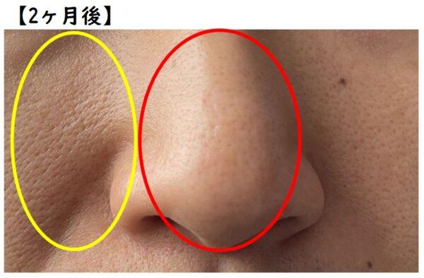 TAIGA流 毛穴パック法 2ヶ月後の肌状態 写真