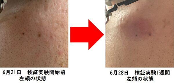 カソーダ検証実験開始より1週間 左頬の状態 写真