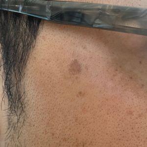 カソーダ検証実験開始より327日経過後 右頬の状態 写真
